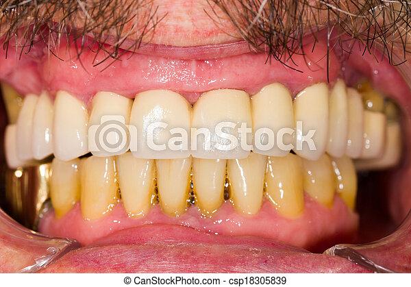 Dental Crowns and Bridges - csp18305839