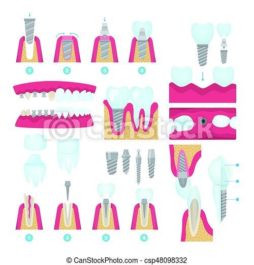 Dental crowns and implantation - csp48098332