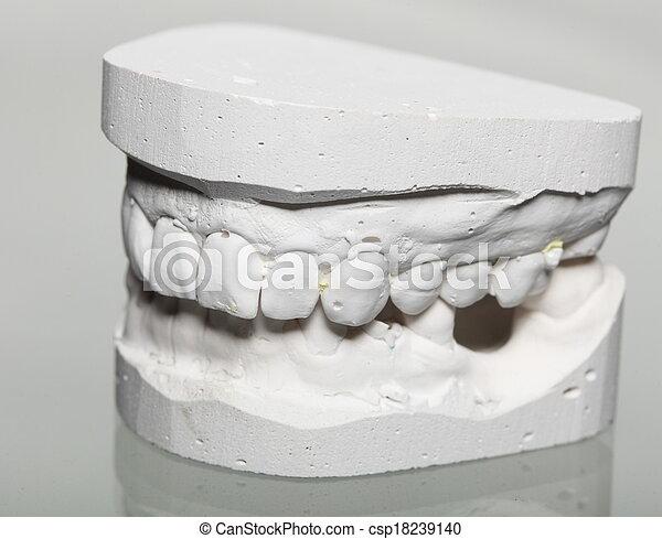 Dental gypsum model mould of teeth in plaster - csp18239140
