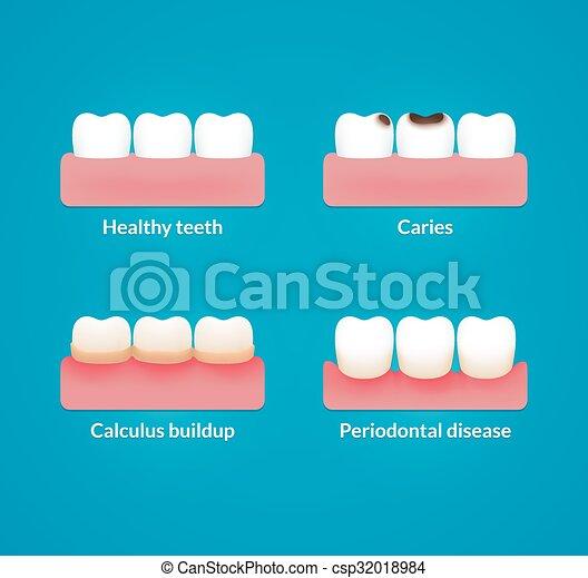 Dental health illustration - csp32018984