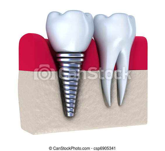 Dental implant - csp6905341