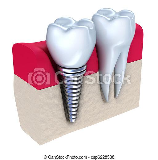 Dental implant - csp6228538