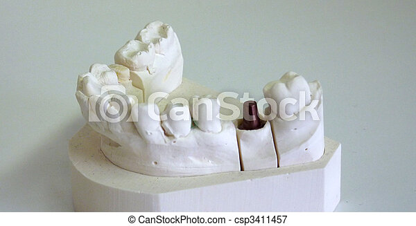 Un implante dental - csp3411457