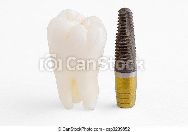 Implante dental - csp3239852