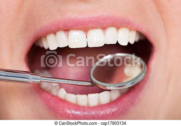 dental, kontrolle - csp17903134