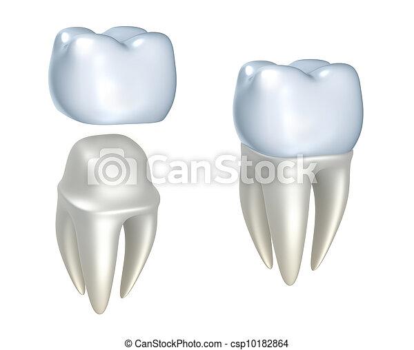Zahnkronen und Zahn - csp10182864