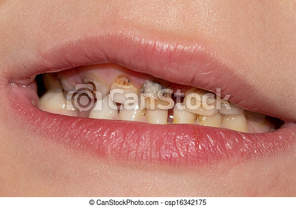 Dental medicine and healthcare - human patient open mouth showing caries teeth decay - csp16342175