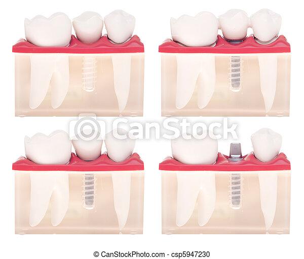 dental, modell, implantat - csp5947230