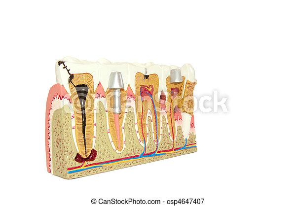 Dental Modell. - csp4647407