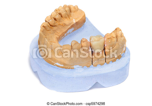 dental mould - csp5974298