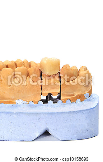 dental mould - csp10158693