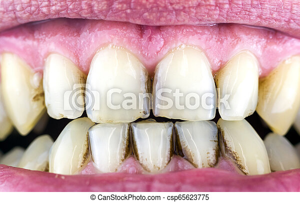 Dental plaque on teeth