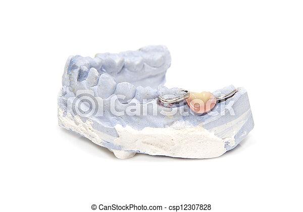 Dental prosthesis on gypsum model plaster - csp12307828
