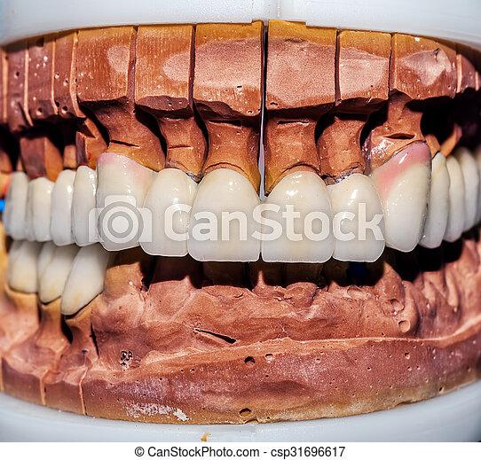 Dental Prosthesis Porcelain Zirconi - csp31696617
