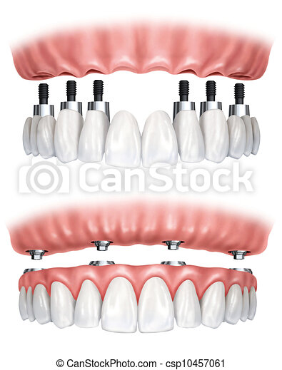 Dental prosthesis - csp10457061