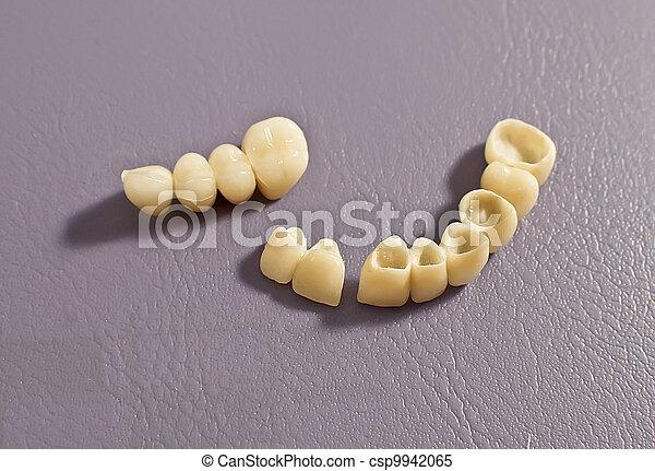 Dental prosthesis . - csp9942065
