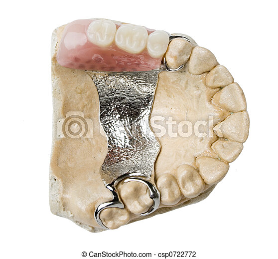dental prosthesis - csp0722772