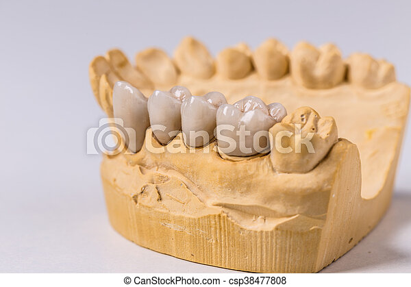 Dental prosthesis - csp38477808