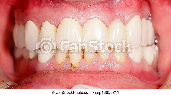 Dental Prosthetics - csp13850211
