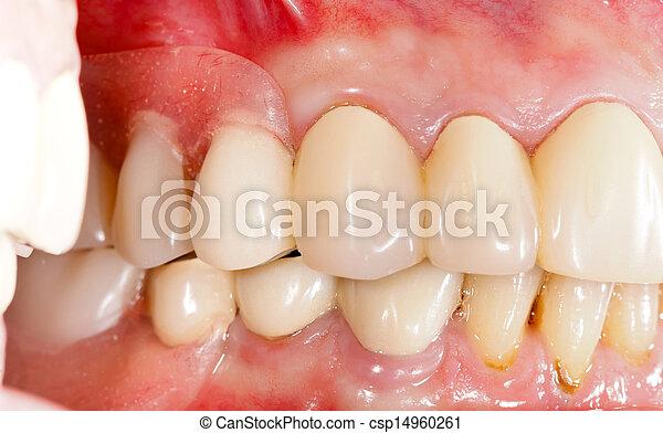 Dental Prosthetics - csp14960261