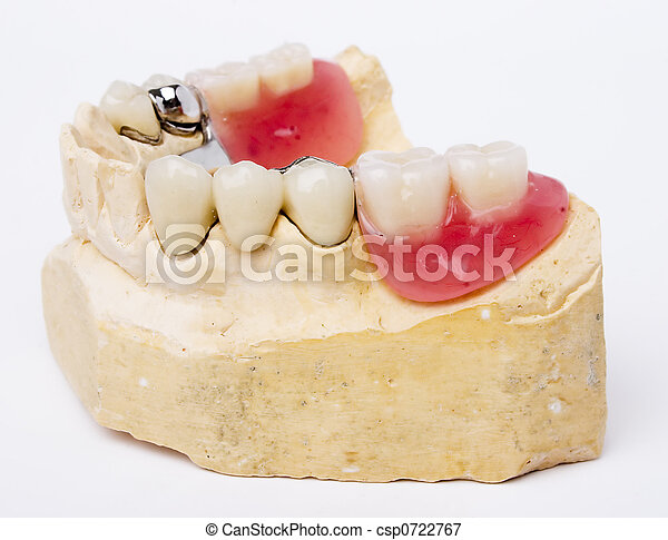 dental, prothese - csp0722767