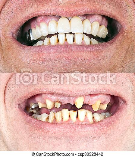 Dental rehabilitation - csp30328442