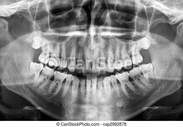 dental scan - csp2992878