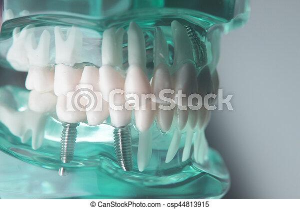 Dental titanium implant screw - csp44813915
