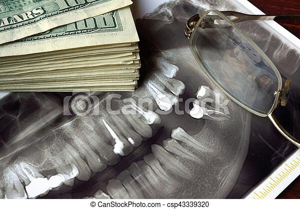 dental, treatment., kosta - csp43339320