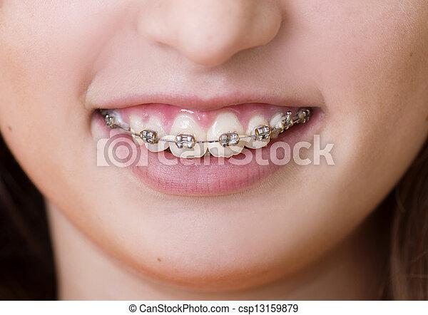 Dental visit - csp13159879