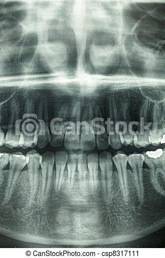 Dental xray, horror skull - csp8317111