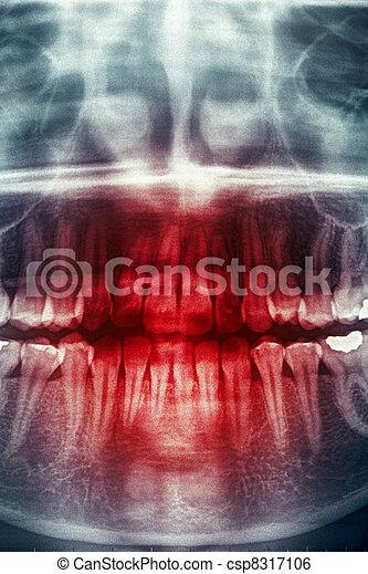 Dental xray, horror skull - csp8317106