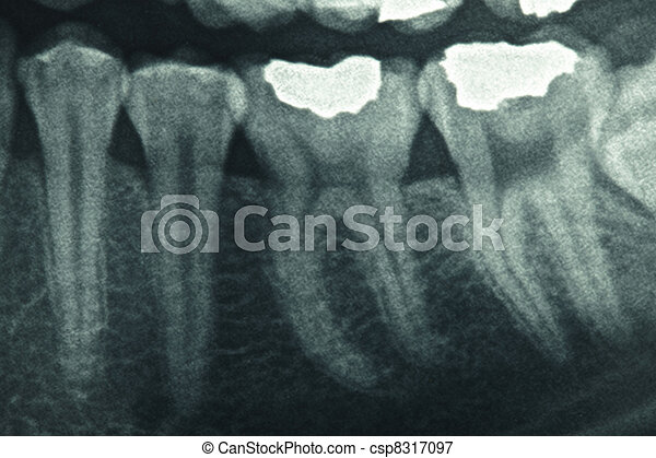Dental xray - csp8317097