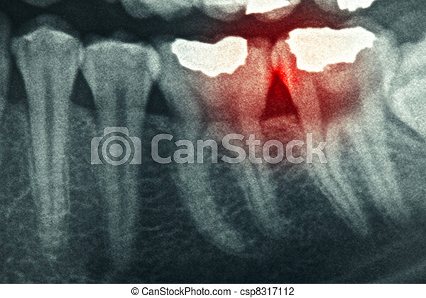 Dental xray - csp8317112