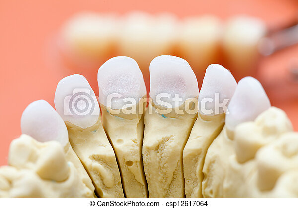 Dental zircon / pressed ceramic, base for an aestetic crown made of porcelain. - csp12617064