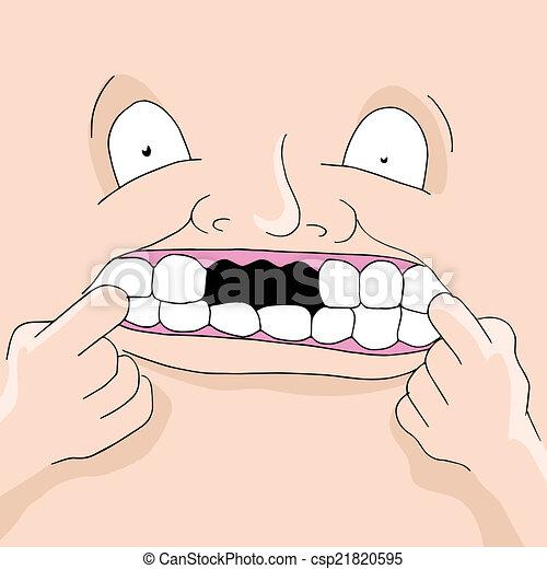 denti mancanti - csp21820595