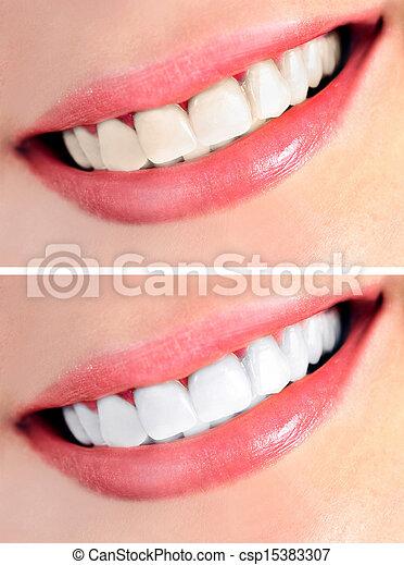 denti sani - csp15383307