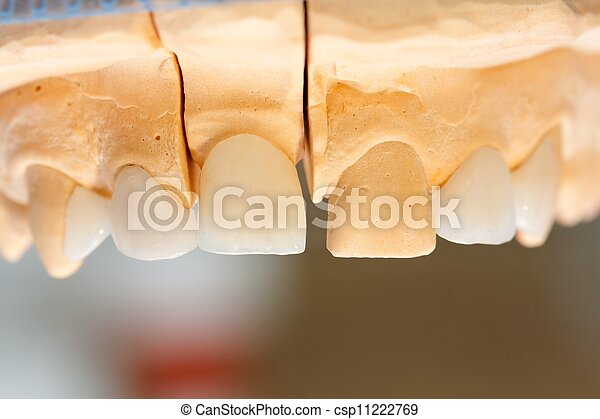 Dentist 's work - csp11222769