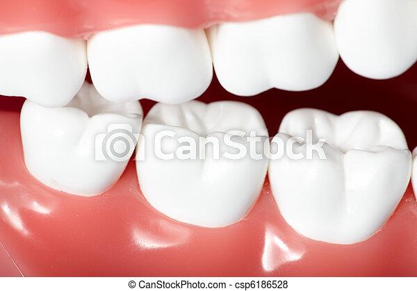 dents - csp6186528