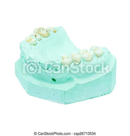 Denture cast model - csp26710534