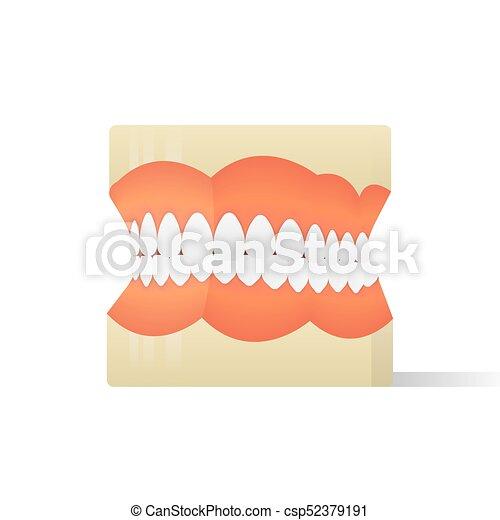 Dentures model illustration vector on white background. Medical concept. - csp52379191