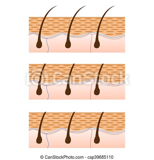 Depilation and skin with hair sectional view. - csp39685110
