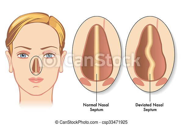 Sleep apnea as well Nose smelling clipart moreover Stuffy Nose Cliparts likewise Blocked nose besides Nose smelling clipart. on stuffy nose cartoon