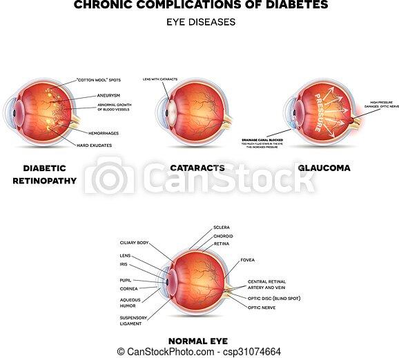 Diabetic Eye Diseases - csp31074664