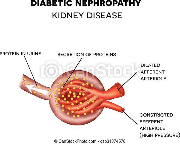 Diabetic nephropathy, glomerulus anatomy. Diabetic nephropathy ...