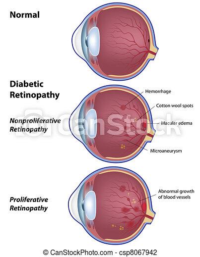 Diabetic retinopathy, eps8 - csp8067942
