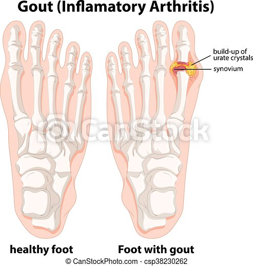 diagram explanation of gout in human foot - csp38230262