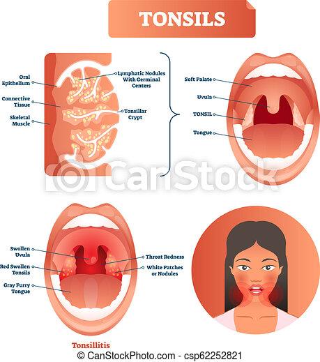 halsfluss ont i kroppen