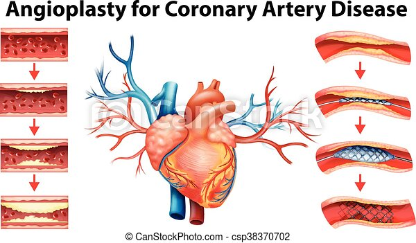 Diagram Showing Angioplasty For Coronary Artery Disease Illustration