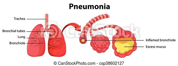 diagram showing lung with pneumonia - csp38602127